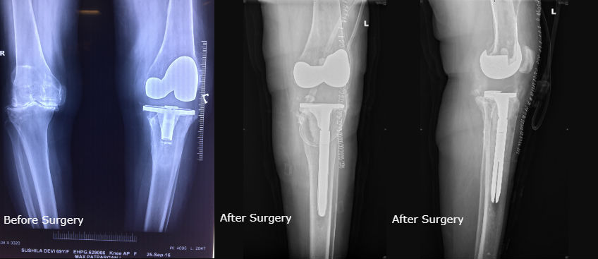 Top Revision Knee Replacement Surgeon in Delhi, India | Dr